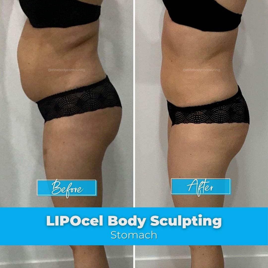 09. LIPOcel Body Sculpting - Stomach