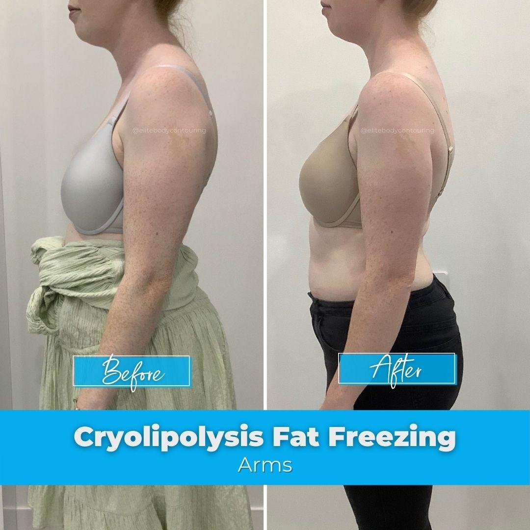 Fat Freezing   Cryolipolysis   Elite Body Contouring