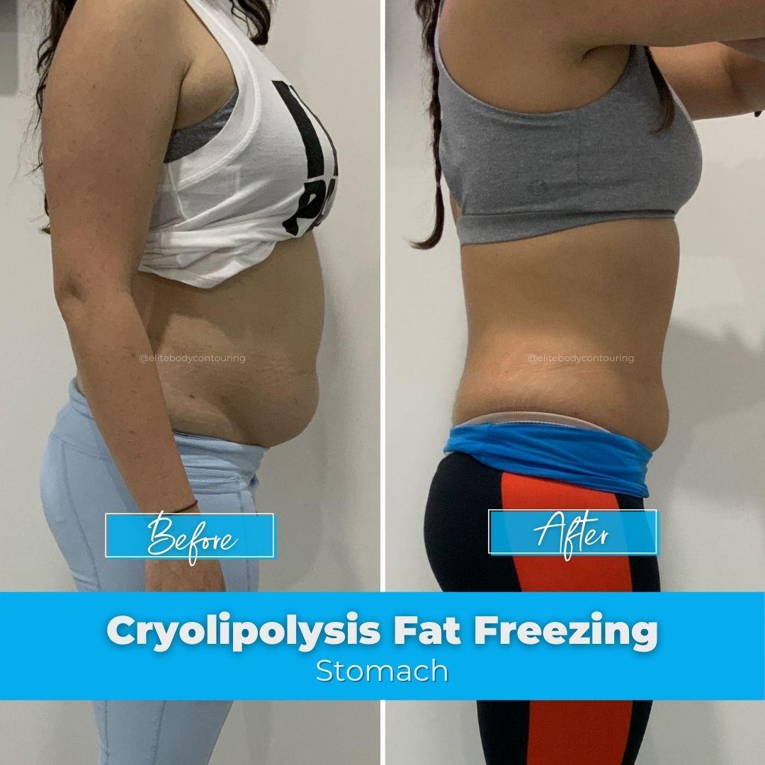 10. Fat Freezing - Stomach