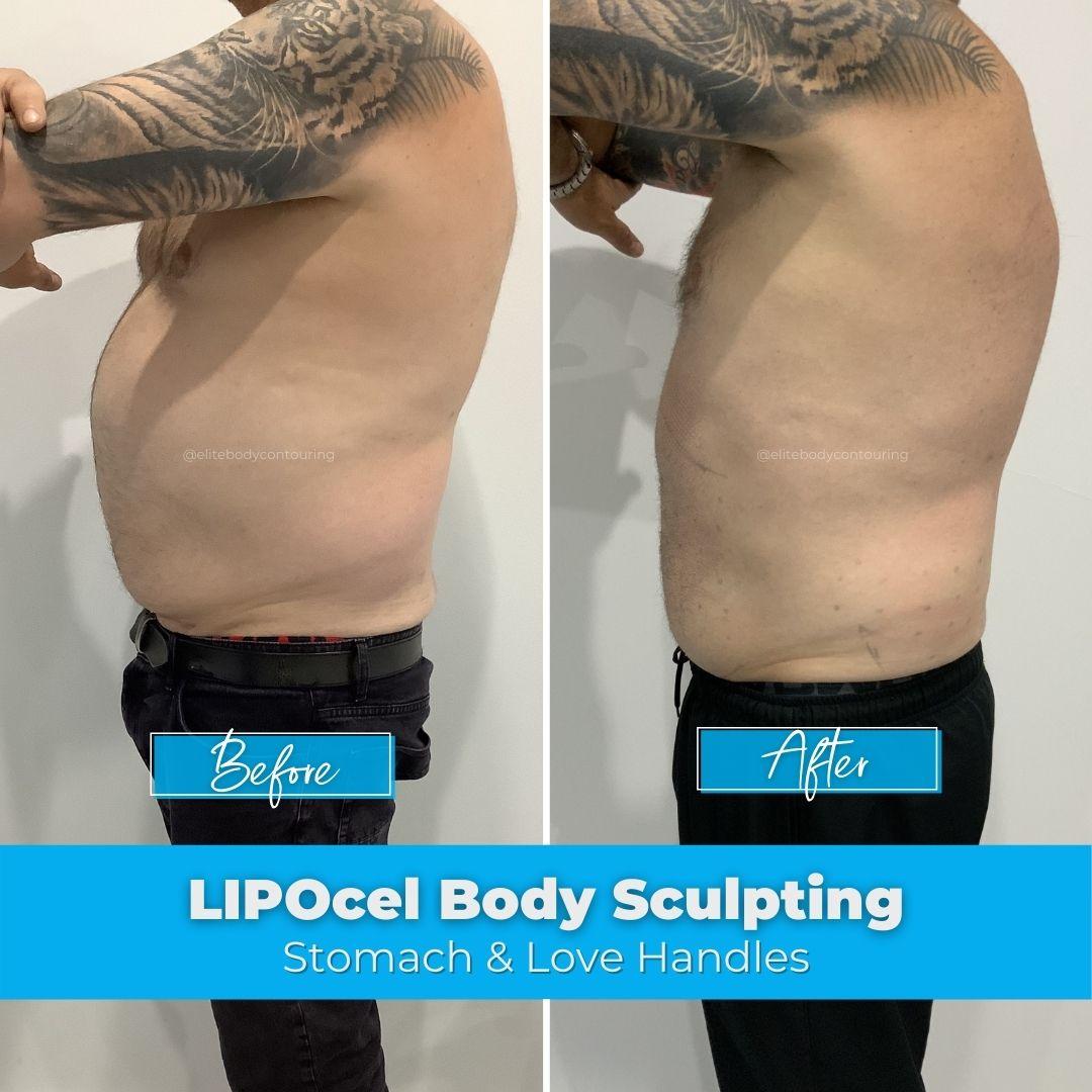 12. LIPOcel Body Sculpting - Stomach & Love Handles