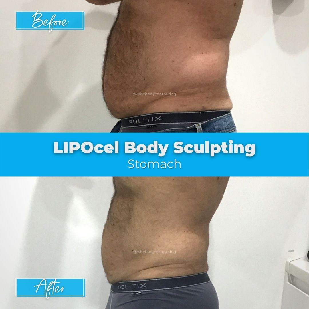 16. LIPOcel Body Sculpting - Stomach