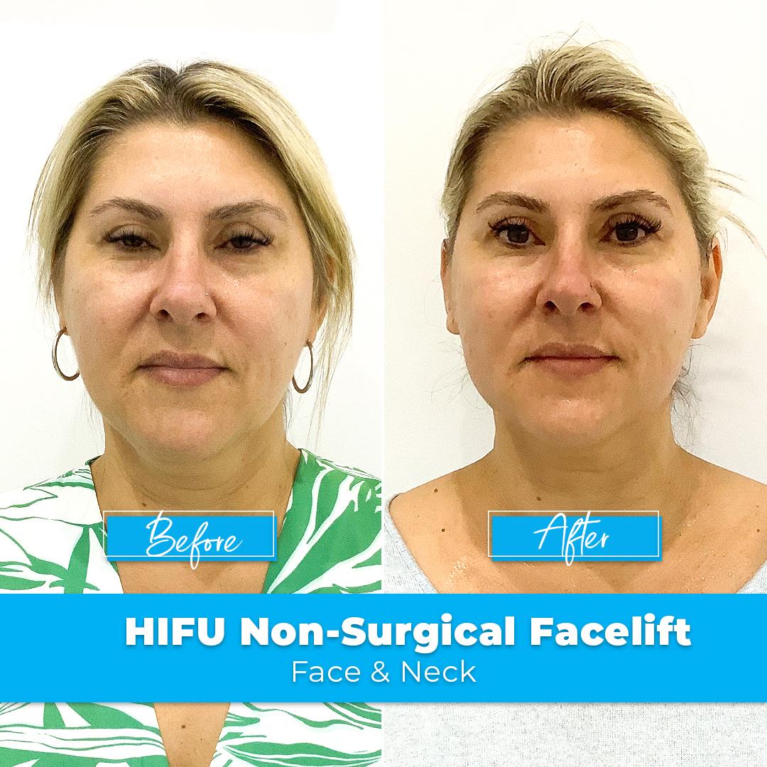 04. HIFU Non-Surgical Facelift