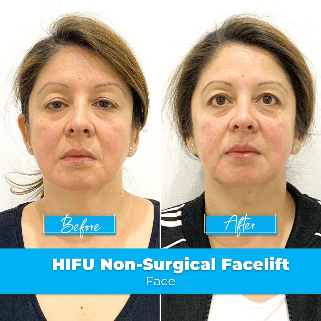 06. HIFU Non-Surgical Facelift