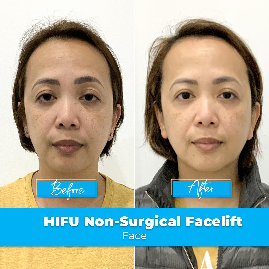 07. HIFU Non-Surgical Facelift